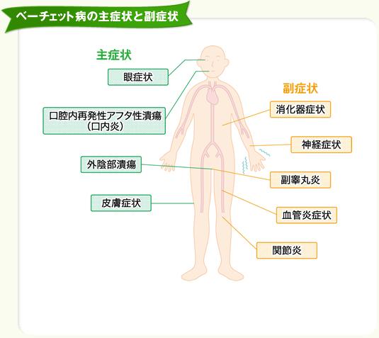ベーチェット病とは | ベーチェット病について | ベーチェット病 navi